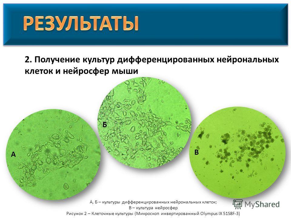 2. Получение культур дифференцированных нейрональных клеток и нейросфер мыши А, Б – культуры дифференцированных нейрональных клеток; В – культура нейросфер Рисунок 2 – Клеточные культуры (Микроскоп инвертированный Olympus IX 51S8F-3) А Б В