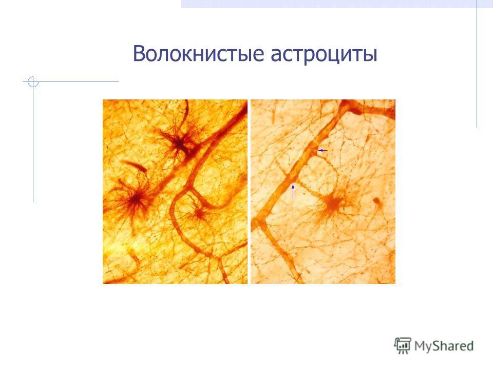 Волокнистые астроциты