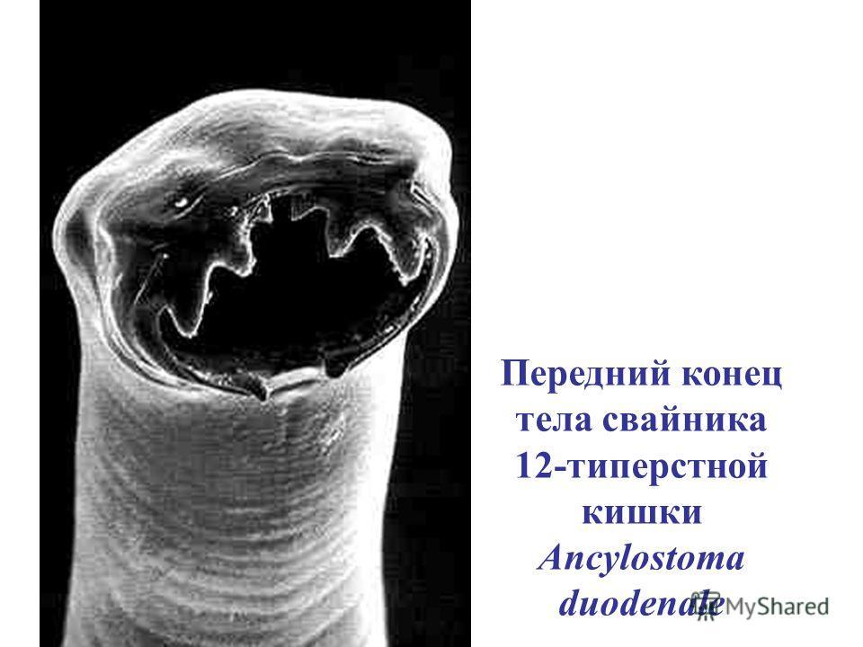 Передний конец тела свайника 12-типерстной кишки Ancylostoma duodenale