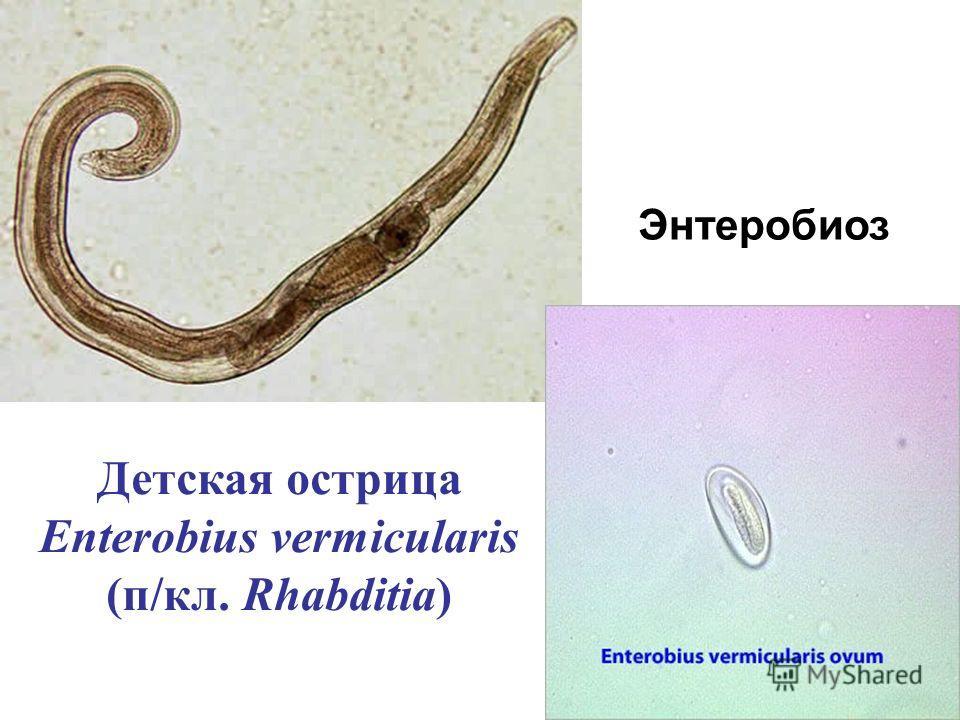 Детская острица Enterobius vermicularis (п/кл. Rhabditia) Энтеробиоз