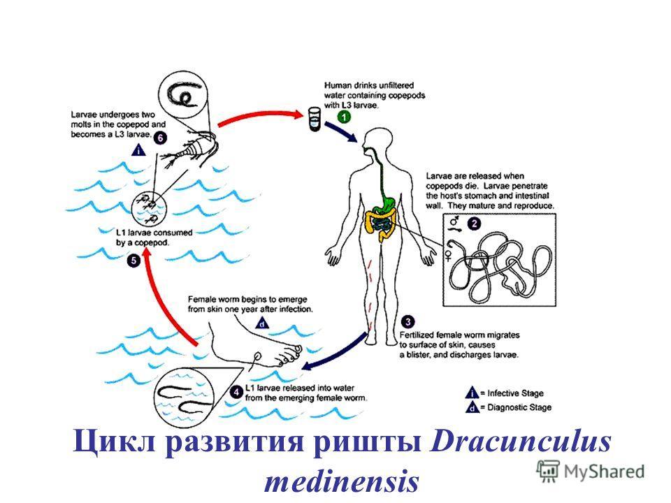Цикл развития ришты Dracunculus medinensis