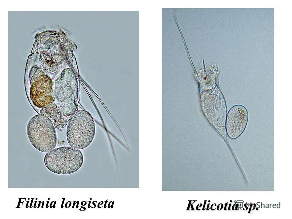 Kelicotia sp. Filinia longiseta