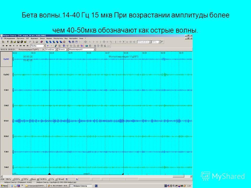 Бета волны.14-40 Гц 15 мкв При возрастании амплитуды более чем 40-50мкв обозначают как острые волны.