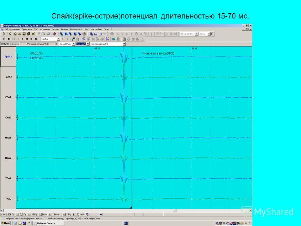 Спайк(spike-острие)потенциал длительностью 15-70 мс.