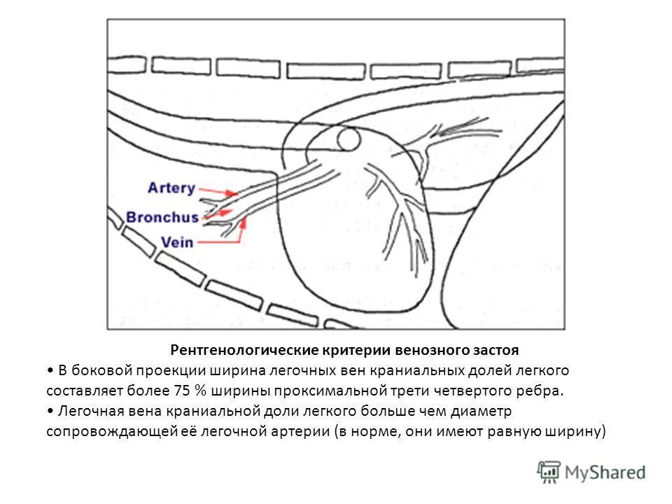 Рентгенологические критерии венозного застоя В боковой проекции ширина легочных вен краниальных долей легкого составляет более 75 % ширины проксимальной трети четвертого ребра. Легочная вена краниальной доли легкого больше чем диаметр сопровождающей