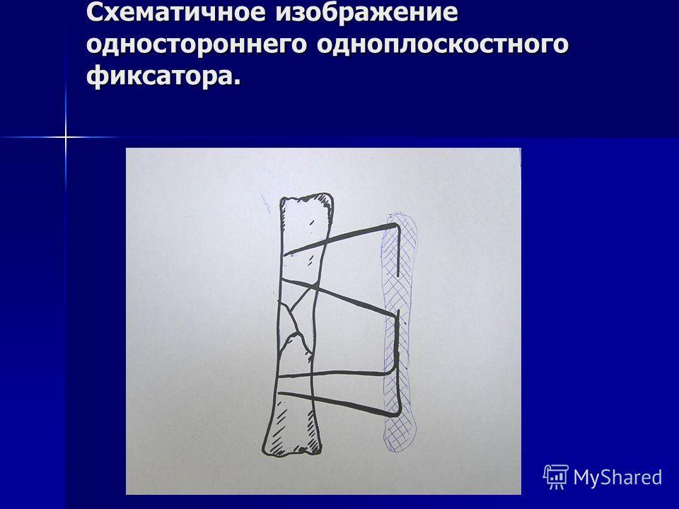 Схематичное изображение одностороннего одноплоскостного фиксатора.
