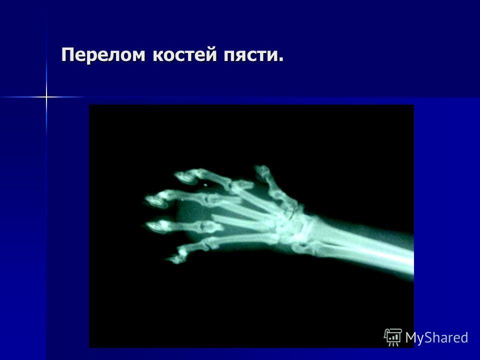 Перелом костей пясти.