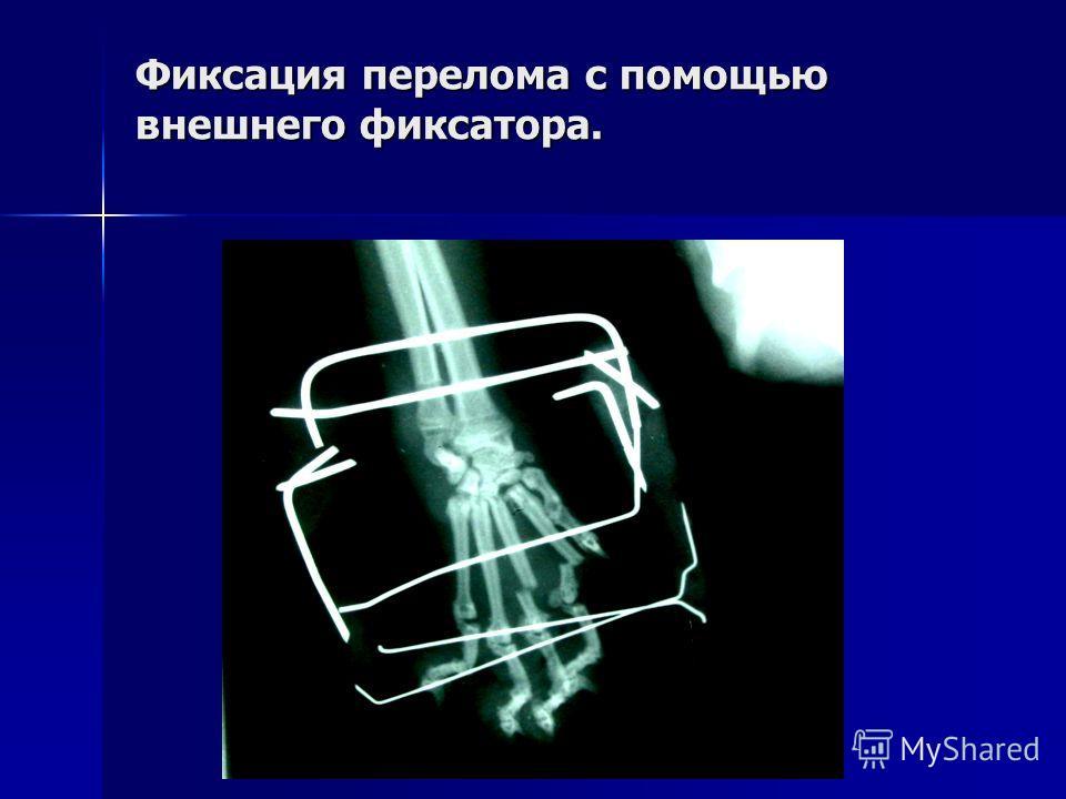 Фиксация перелома с помощью внешнего фиксатора.