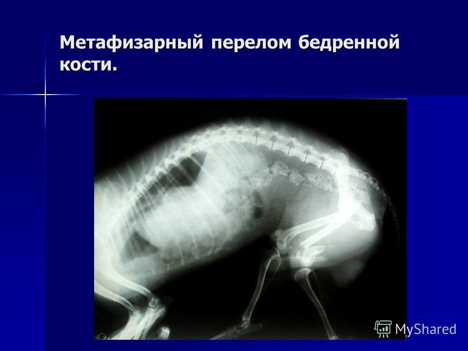 Метафизарный перелом бедренной кости.