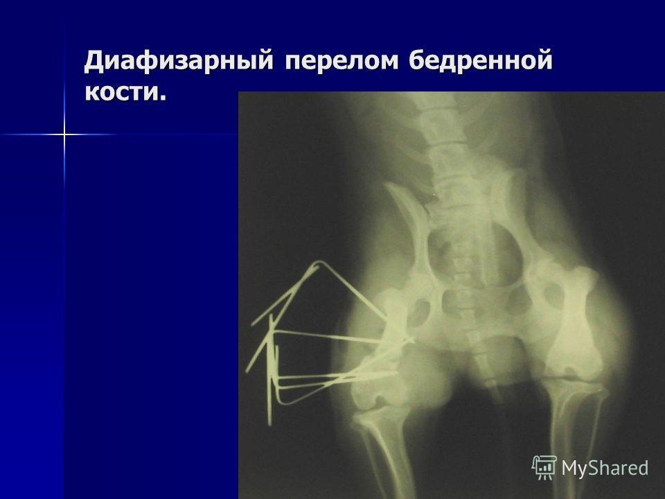 Диафизарный перелом бедренной кости.