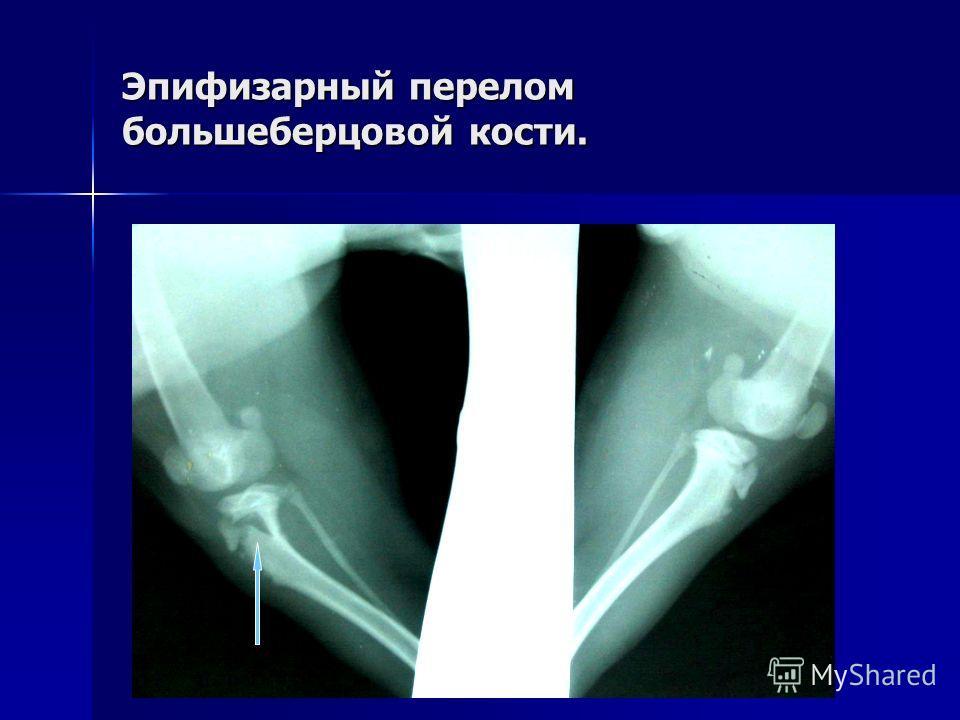 Эпифизарный перелом большеберцовой кости.