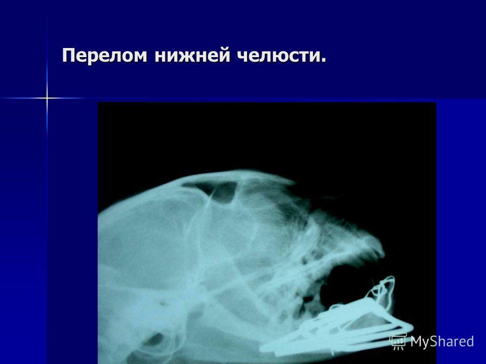 Перелом нижней челюсти.