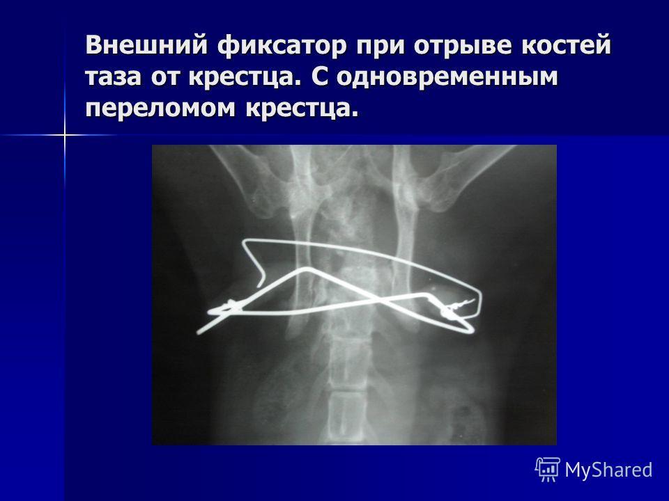 Внешний фиксатор при отрыве костей таза от крестца. С одновременным переломом крестца.