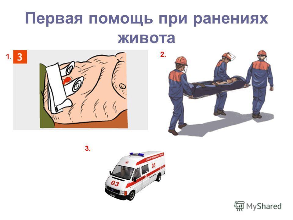 Первая помощь при ранениях живота 1.1. 2. 3.