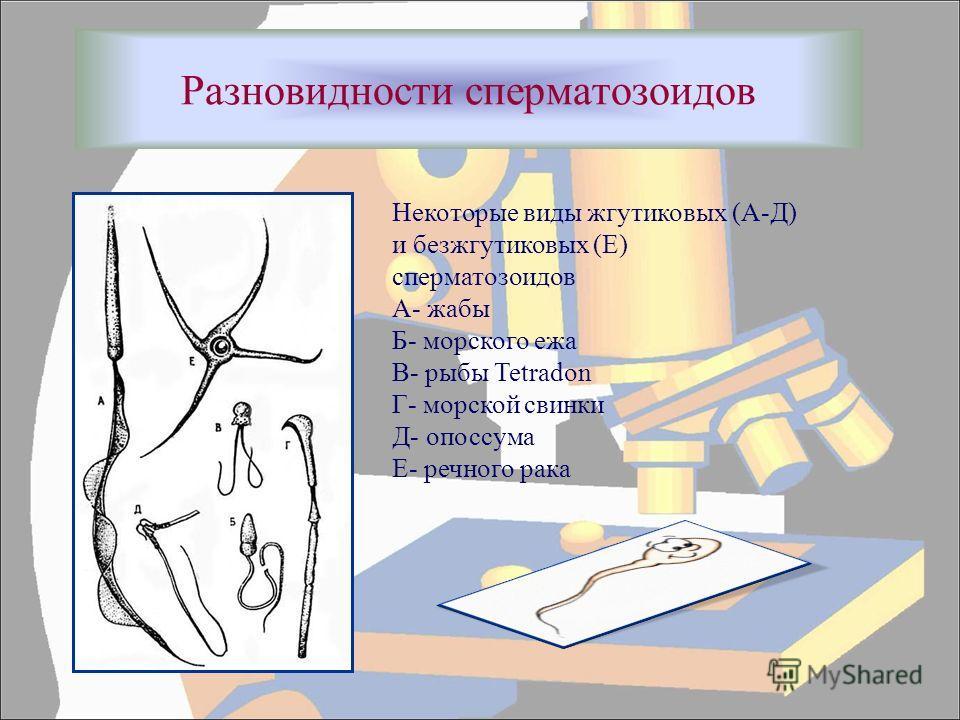 Разновидности сперматозоидов Некоторые виды жгутиковых (А-Д) и безжгутиковых (Е) сперматозоидов А- жабы Б- морского ежа В- рыбы Tetradon Г- морской свинки Д- опоссума Е- речного рака