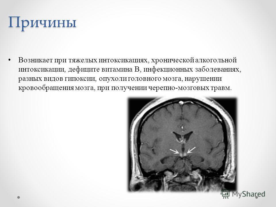 Причины Возникает при тяжелых интоксикациях, хронической алкогольной интоксикации, дефиците витамина В, инфекционных заболеваниях, разных видов гипоксии, опухоли головного мозга, нарушении кровообращения мозга, при получении черепно-мозговых травм.
