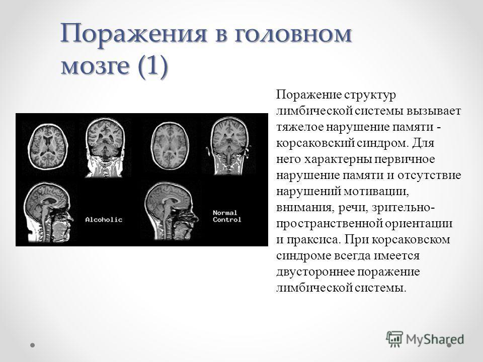 Синдром Корсаковский фото