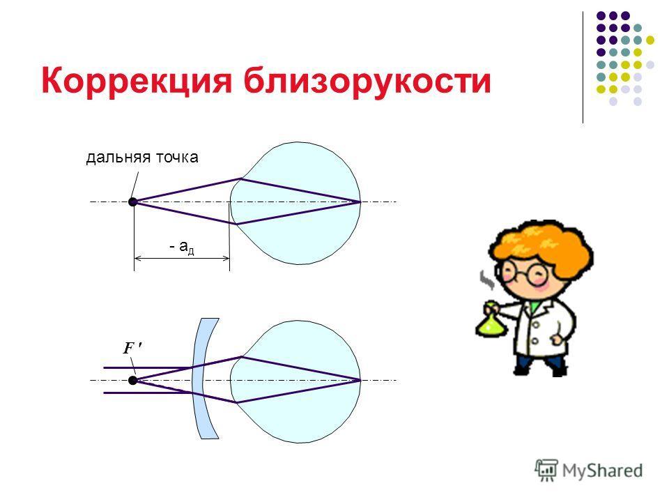 Коррекция близорукости дальняя точка - a д F
