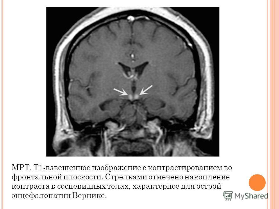 MPT, T1-взвешенное изображение с контрастированием во фронтальной плоскости. Стрелками отмечено накопление контраста в сосцевидных телах, характерное для острой энцефалопатии Вернике.