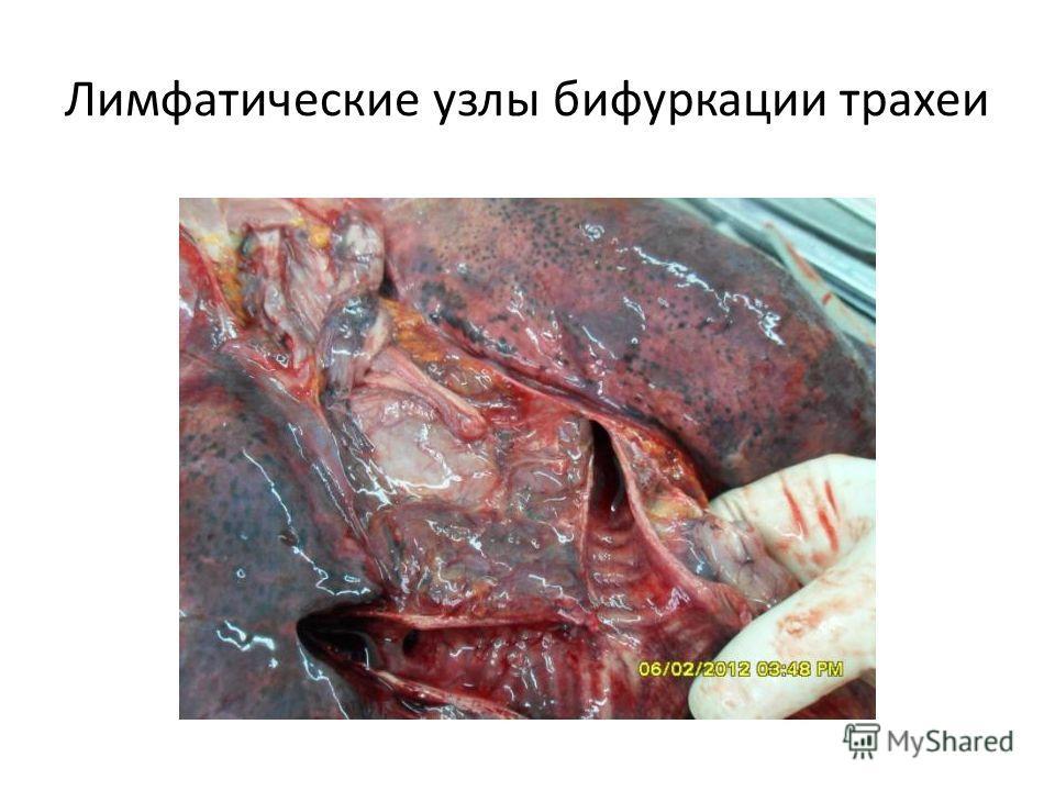 Лимфатические узлы бифуркации трахеи