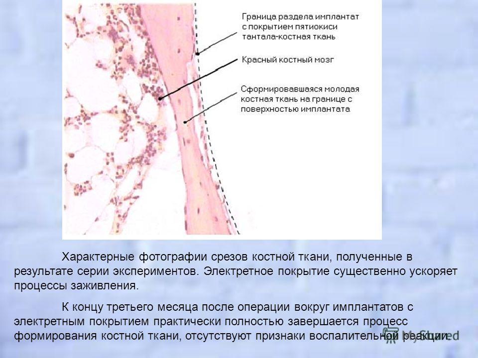 Характерные фотографии срезов костной ткани, полученные в результате серии экспериментов. Электретное покрытие существенно ускоряет процессы заживления. К концу третьего месяца после операции вокруг имплантатов с электретным покрытием практически пол