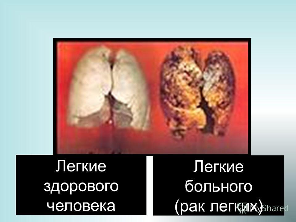 20 Легкие здорового человека Легкие больного (рак легких)
