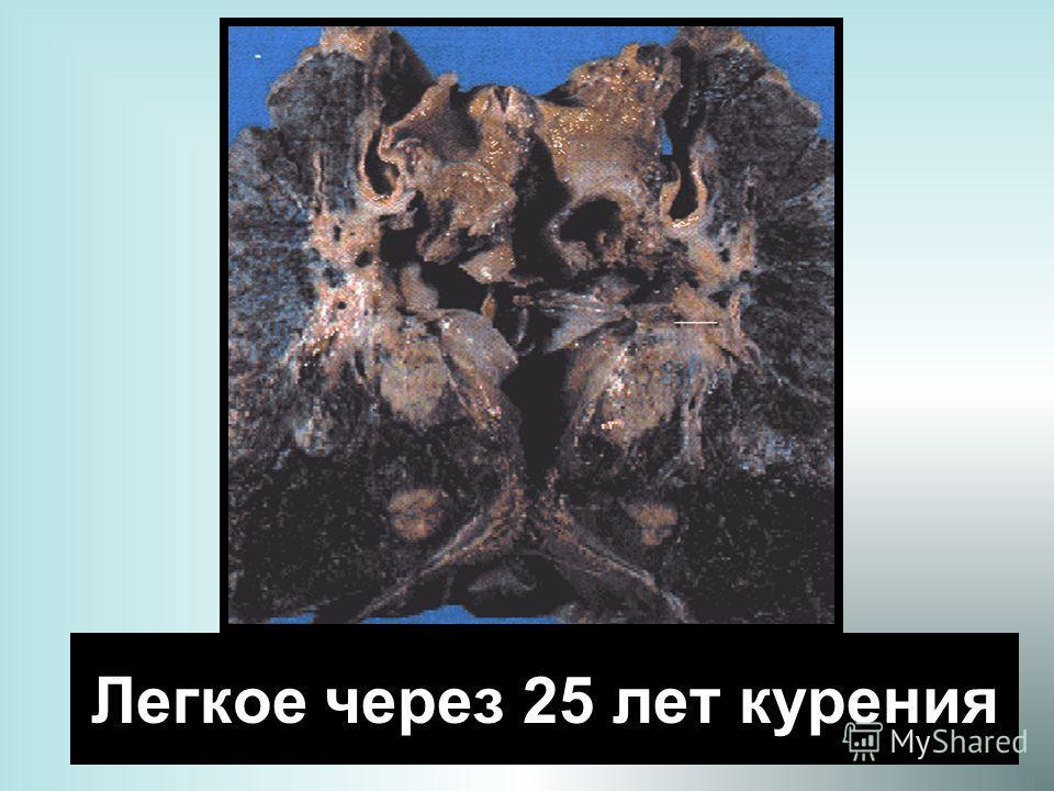 23 Легкое через 25 лет курения