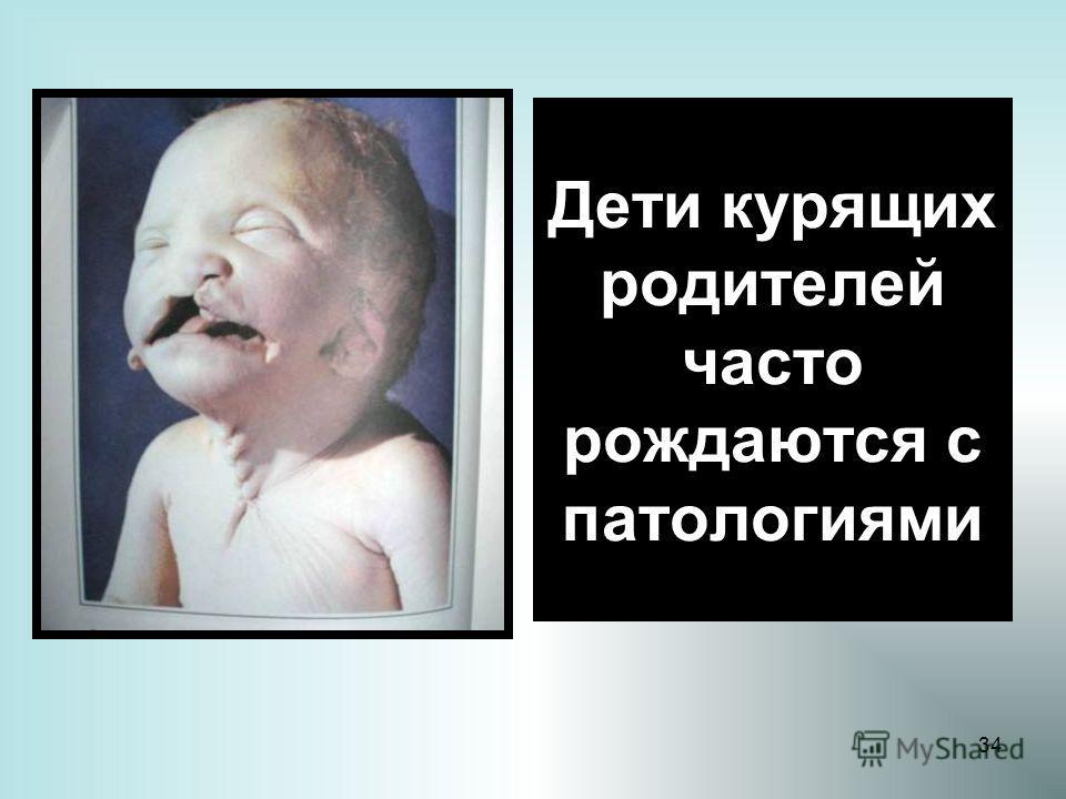 34 Дети курящих родителей часто рождаются с патологиями