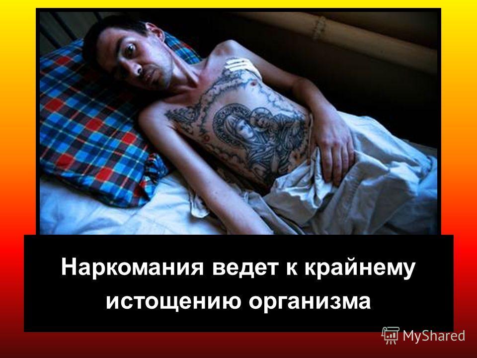 7 Наркомания ведет к крайнему истощению организма