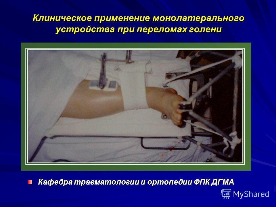 Клиническое применение монолатерального устройства при переломах голени Кафедра травматологии и ортопедии ФПК ДГМА