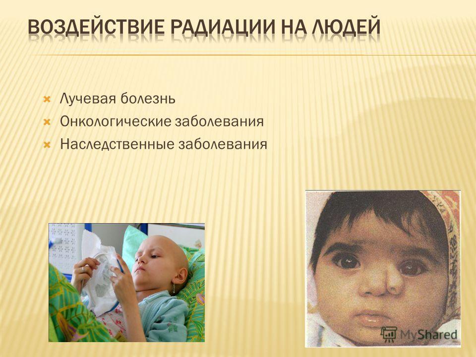 Лучевая болезнь Онкологические заболевания Наследственные заболевания