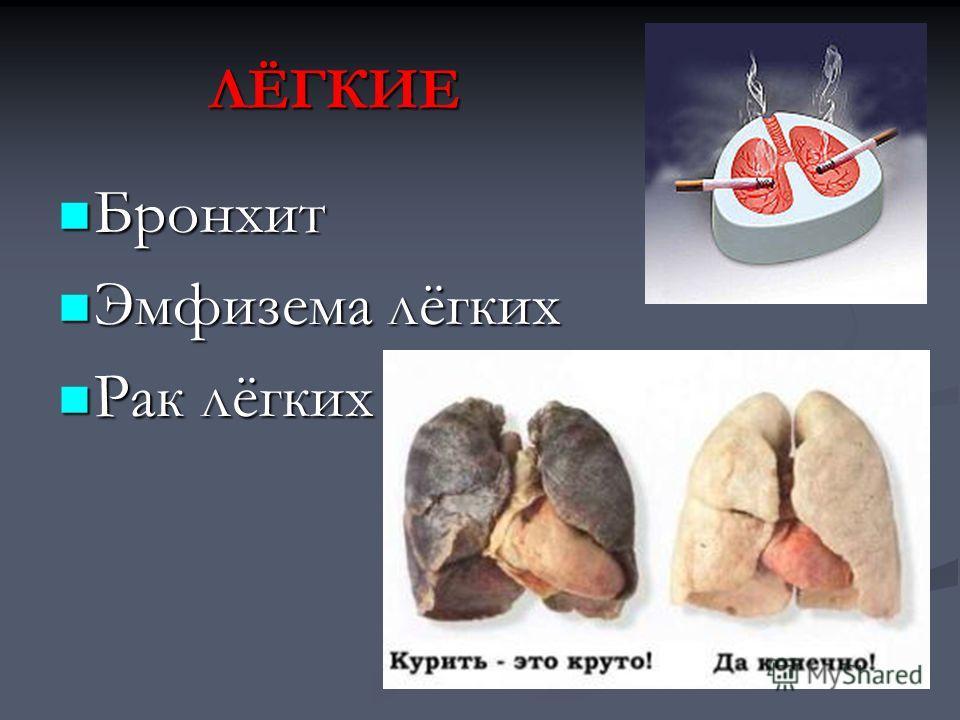 ЛЁГКИЕ Бронхит Бронхит Эмфизема лёгких Эмфизема лёгких Рак лёгких Рак лёгких