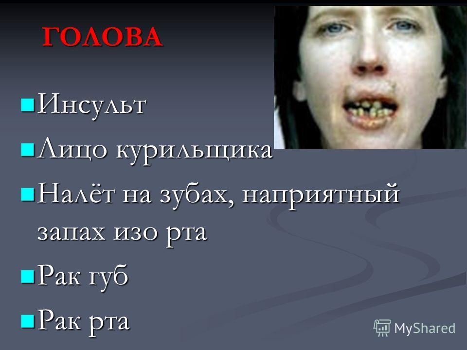 ГОЛОВА Инсульт Инсульт Лицо курильщика Лицо курильщика Налёт на зубах, наприятный запах изо рта Налёт на зубах, наприятный запах изо рта Рак губ Рак губ Рак рта Рак рта