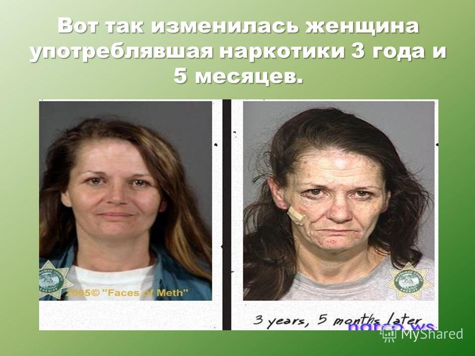Вот так изменилась женщина употреблявшая наркотики 3 года и 5 месяцев.