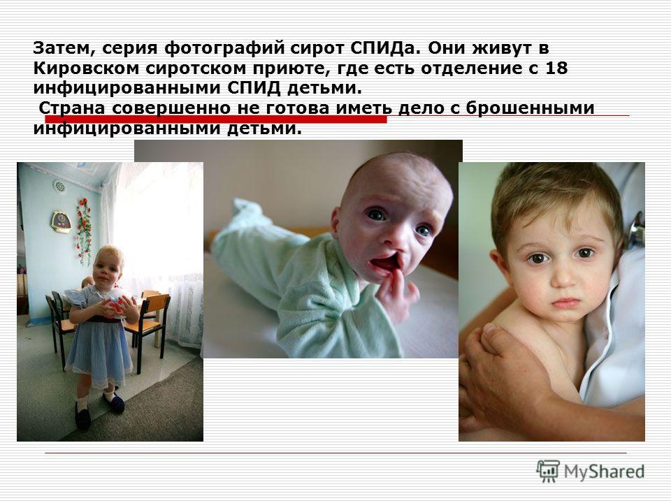 Затем, серия фотографий сирот СПИДа. Они живут в Кировском сиротском приюте, где есть отделение с 18 инфицированными СПИД детьми. Страна совершенно не готова иметь дело с брошенными инфицированными детьми.