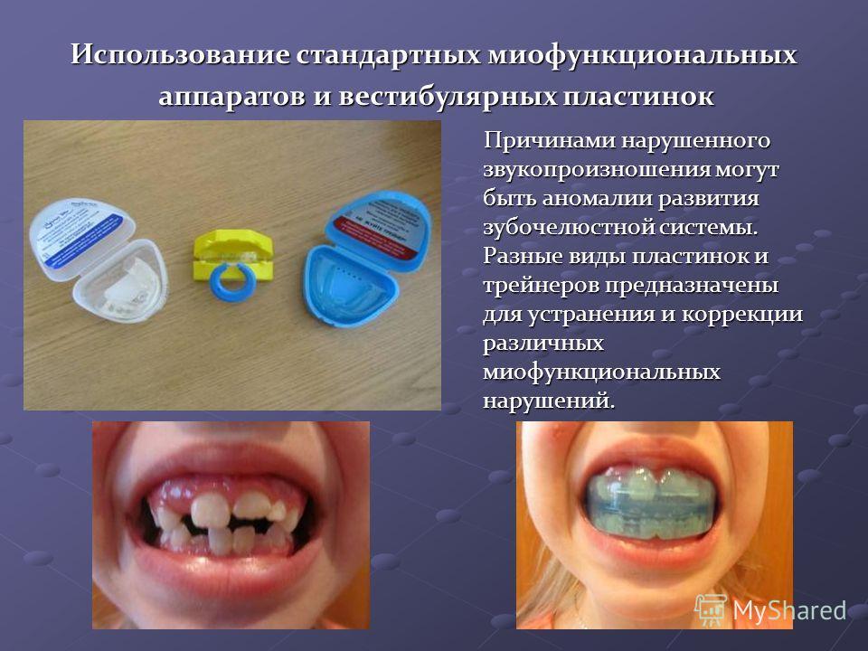 Причинами нарушенного звукопроизношения могут быть аномалии развития зубочелюстной системы. Разные виды пластинок и трейнеров предназначены для устранения и коррекции различных миофункциональных нарушений. Причинами нарушенного звукопроизношения могу