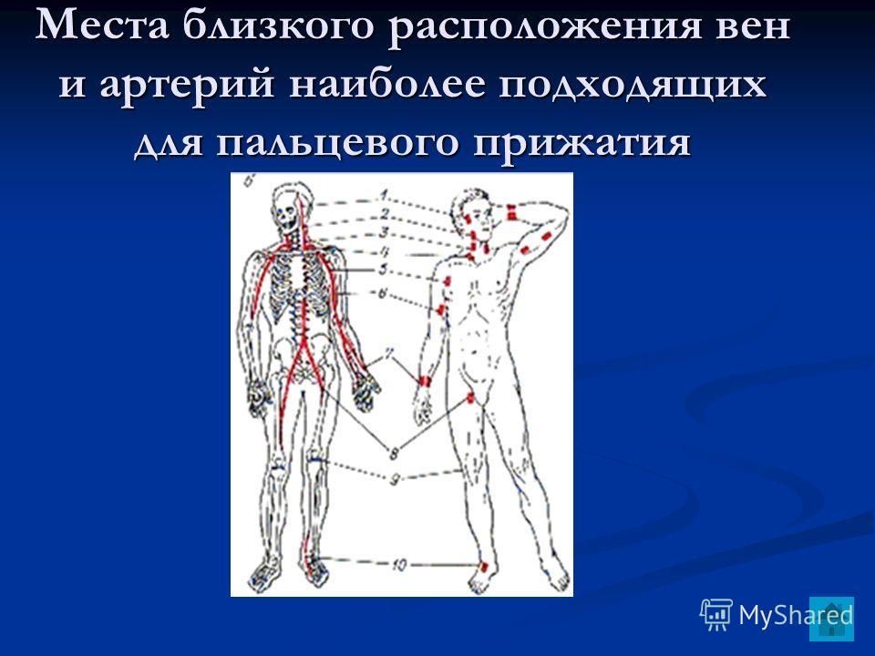 Места близкого расположения вен и артерий наиболее подходящих для пальцевого прижатия