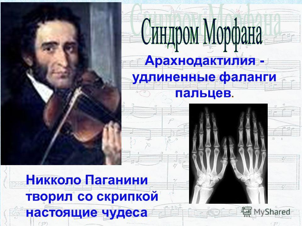 Арахнодактилия - удлиненные фаланги пальцев. Никколо Паганини творил со скрипкой настоящие чудеса