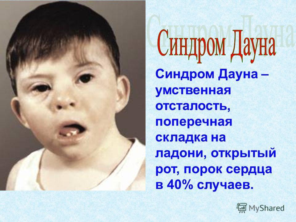 Синдром Дауна – умственная отсталость, поперечная складка на ладони, открытый рот, порок сердца в 40% случаев.