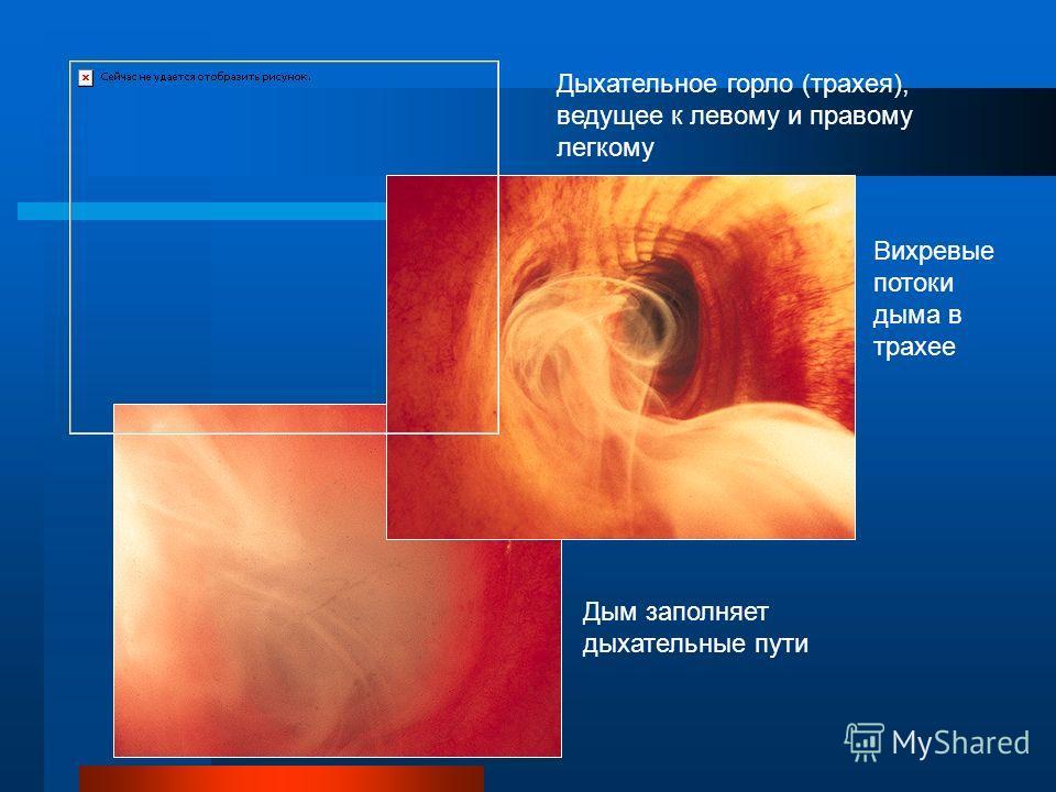 Что происходит с дымом в организме? Трахея делится на левый и правый главные бронхи, которые ведут к легким После затяжки дым вихревой спиралью продвигается по бронхам, и его частицы оседают на их стенках, Дым заполняет бронхи, он подавляет очищающую