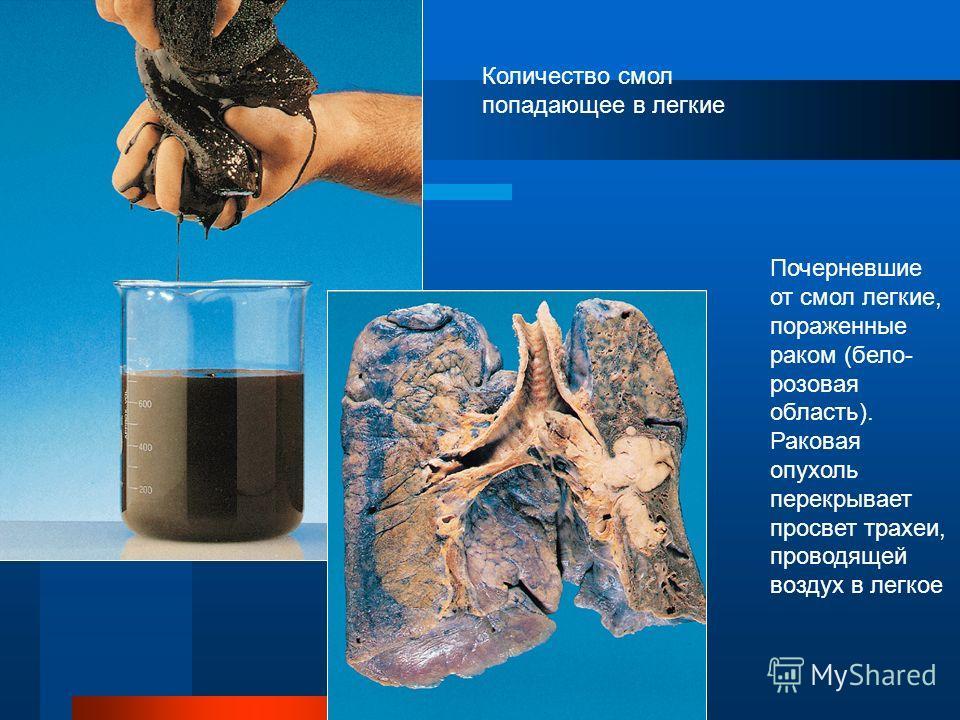 Курение ведет к раку легких Смолы Тот, кто выкуривает, в среднем, по 20 сигарет в день в течение одного года вносит в легкие до одного стакана смол. Большая их часть там и остается; от них легкие чернеют, возрастает риск возникновения рака легкого. Р