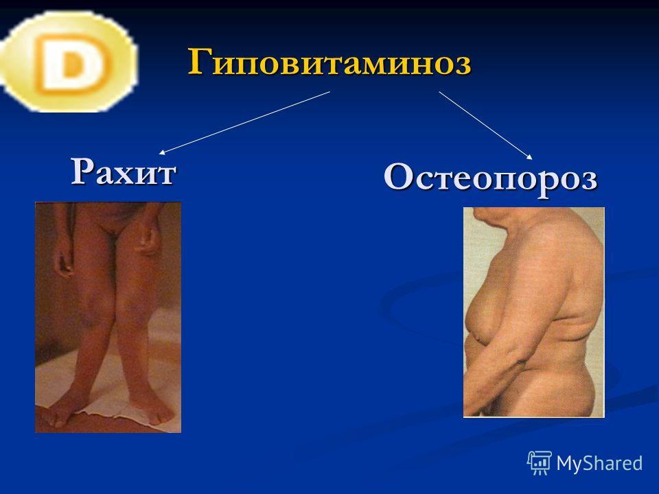 Гиповитаминоз Рахит Остеопороз