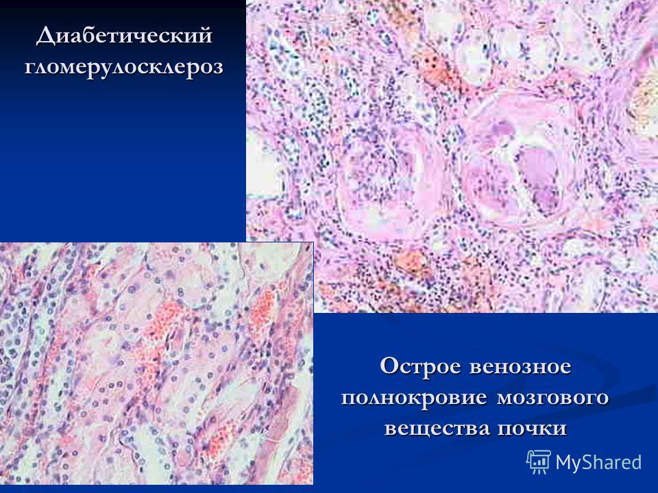 Диабетический гломерулосклероз Острое венозное полнокровие мозгового вещества почки