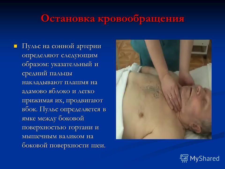 Остановка кровообращения Пульс на сонной артерии определяют следующим образом: указательный и средний пальцы накладывают плашмя на адамово яблоко и легко прижимая их, продвигают вбок. Пульс определяется в ямке между боковой поверхностью гортани и мыш