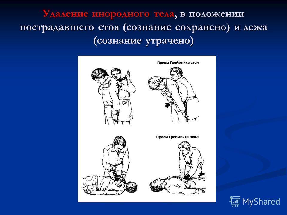 Удаление инородного тела, в положении пострадавшего стоя (сознание сохранено) и лежа (сознание утрачено)