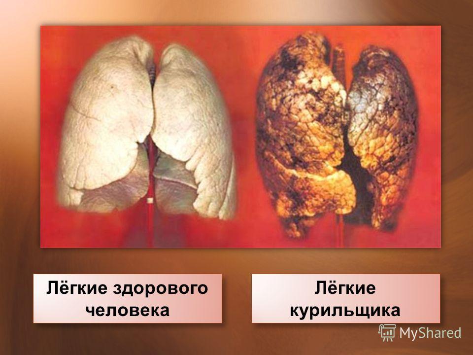 Лёгкие здорового человека Лёгкие курильщика Лёгкие курильщика