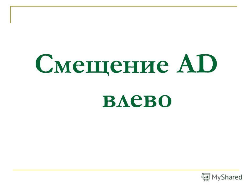 Смещение AD влево