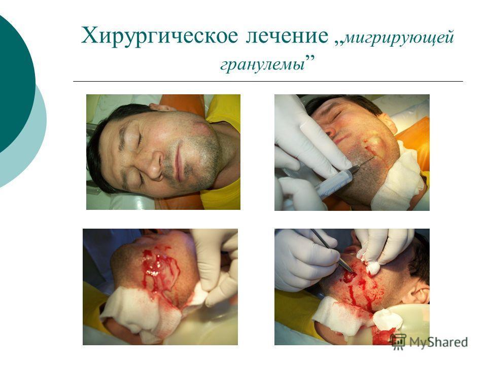 Хирургическое лечение мигрирующей гранулемы