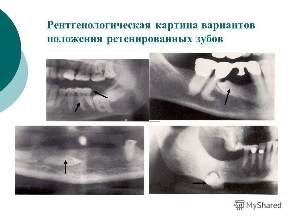 Рентгенологическая картина вариантов положения ретенированных зубов