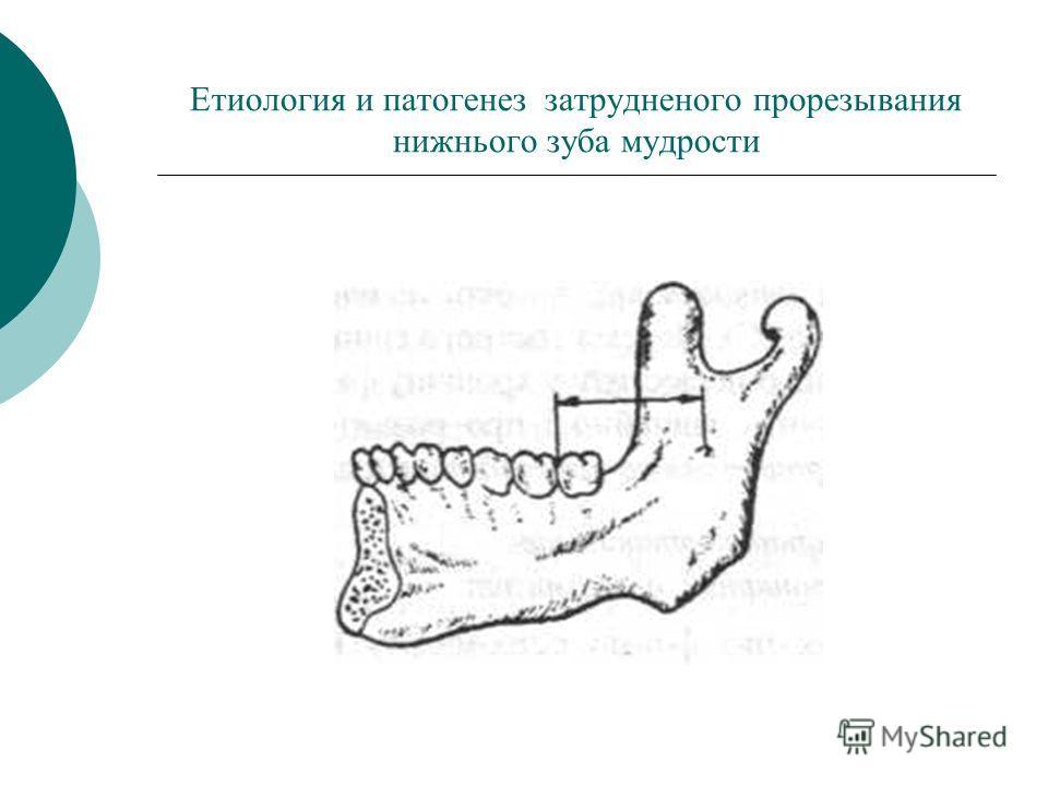 Етиология и патогенез затрудненого прорезывания нижнього зуба мудрости